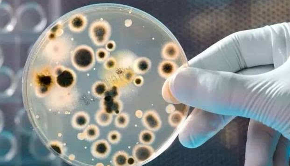 Toilet bacteria, laboratory testing, bacterial culture, bacterial amplification